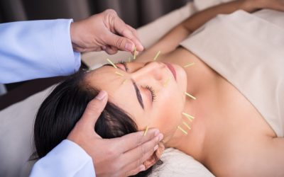 Acupuncture Treatments for Headaches