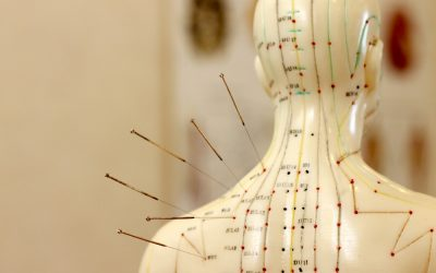 How Acupuncture Can Release Natural Painkillers