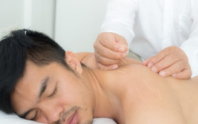 How Acupuncture Promotes Healing Blood Flow