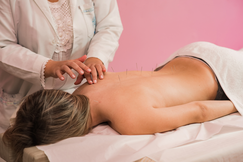 What You Should Learn About Acupuncture Before Getting Started