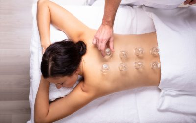 Surprising Benefits of Cupping Therapy