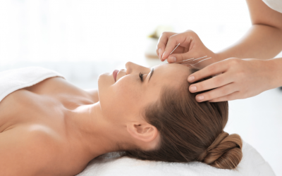 Using Acupuncture To Look And Feel Better